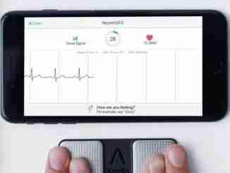 Aplicativo de celular identifica com precisão ataques cardíacos potencialmente fatais, diz estudo
