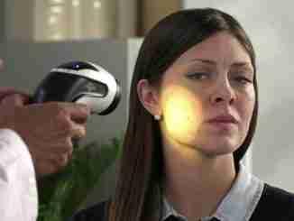 Tratamento da Acne com Fototerapia de Luz Polarizada